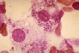 Intracellular L donovani in Bone Marrow Clot Section