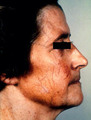 Atrophy of facial skin